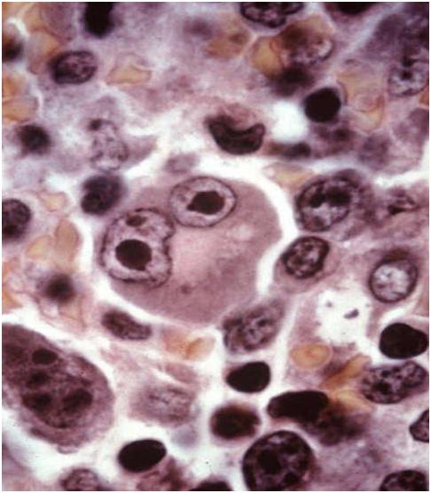 The Pleomorphic Immunoblasts: Infectious Mononucleosis