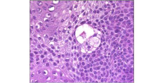 The Allocated Acrosyringium Eccrine Poroma
